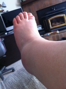 sprained ankle right after it happend...
